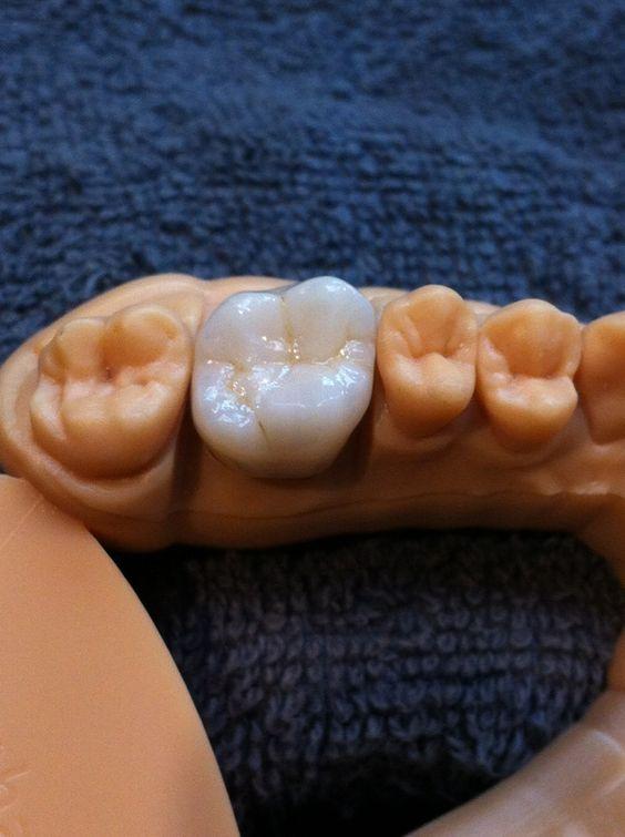 Зубні імпланти в Житомирі