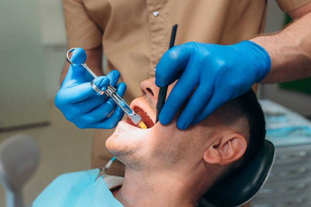 Видалення зубів