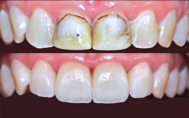 Реставрація зубів під мікроскопом