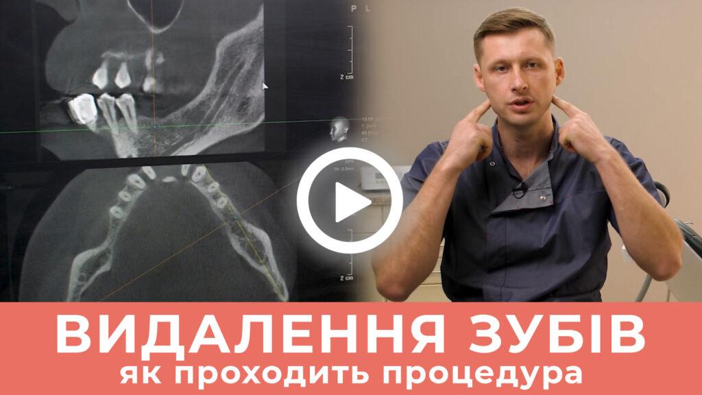 Видалення зубів у Стоматології Мазур в Житомирі