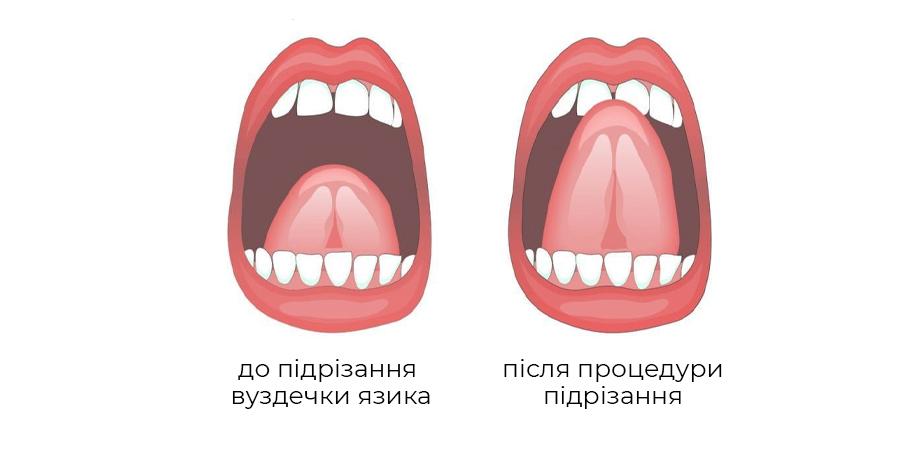 Підрізання вуздечки язика